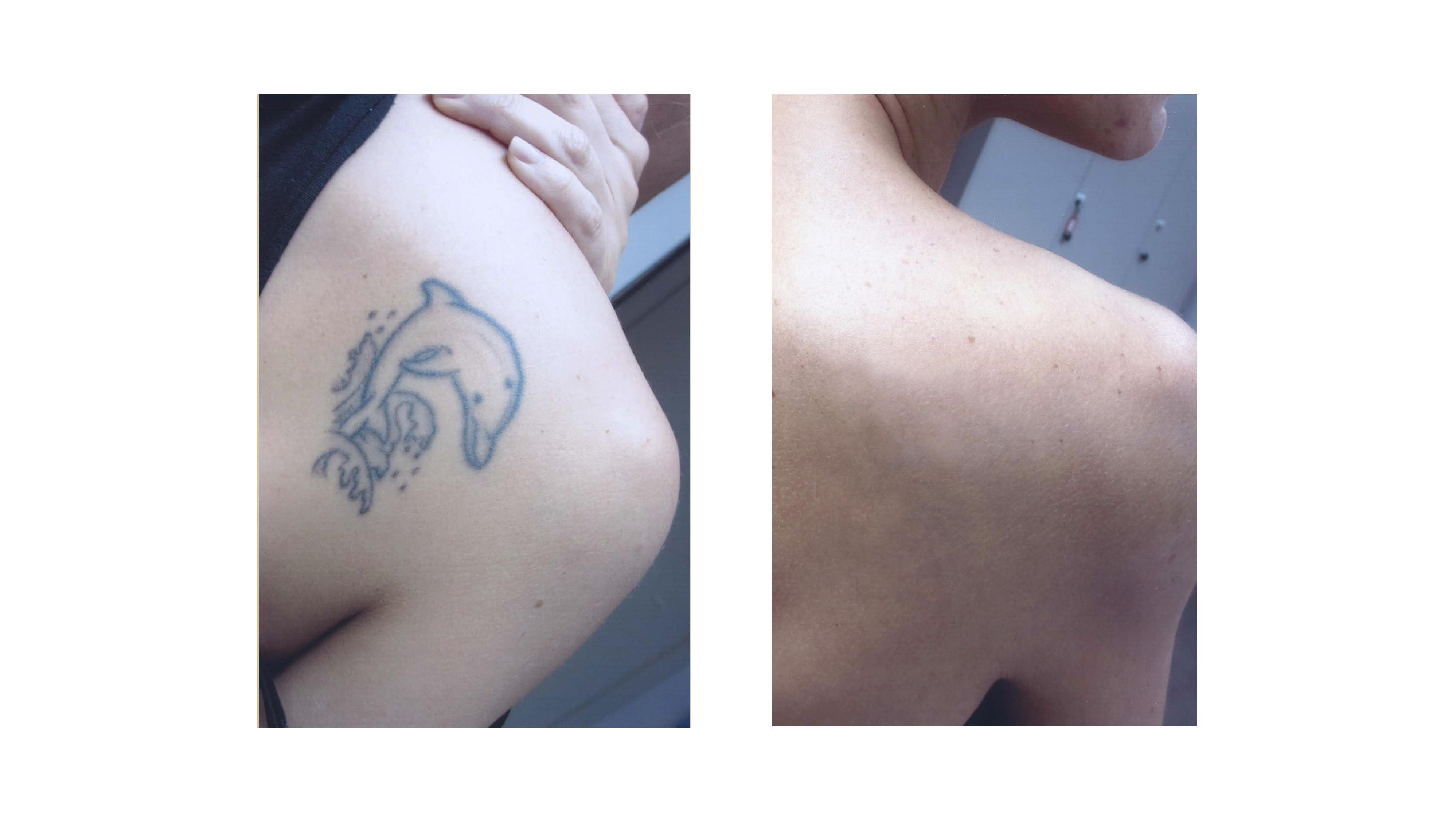 Rimozione tatuaggio